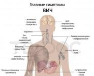 Симптомы ВИЧ